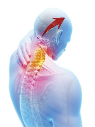 Is your migraine a pain in the neck?