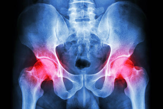 FEMOROACETABULAR IMPINGEMENT SYNDROME (FAI)